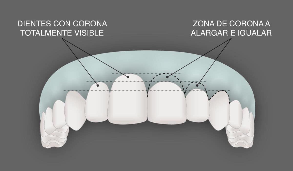 ¿En qué consiste la técnica de los alargamientos coronarios?