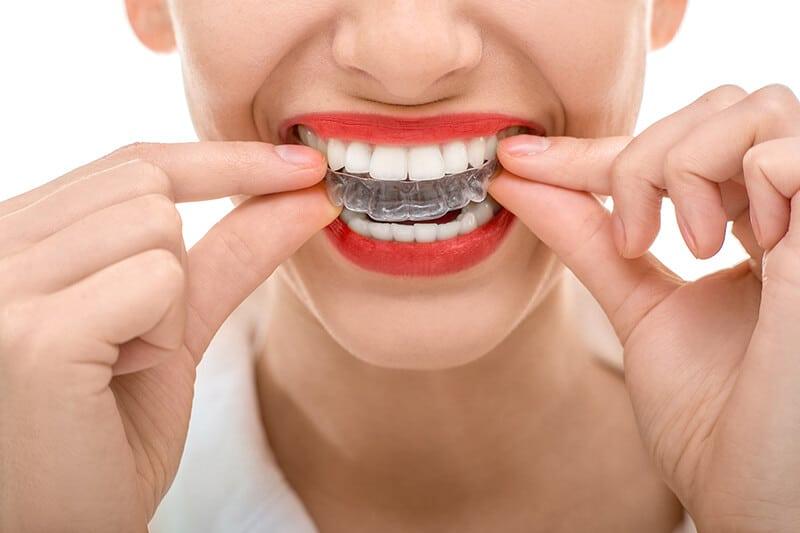 ortodoncia invisaling_cont