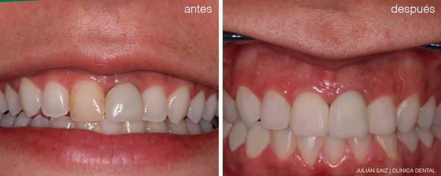 Carillas dentales | Julián Saiz Clínica Dental