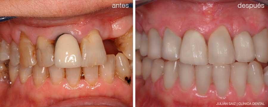 Implantes dentales y estética dental | Julián Saiz Clínica Dental