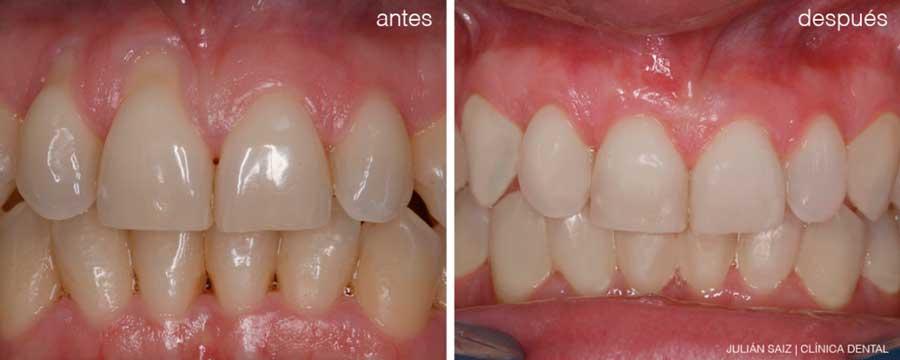Estética de la encía | Julián Saiz Clínica Dental