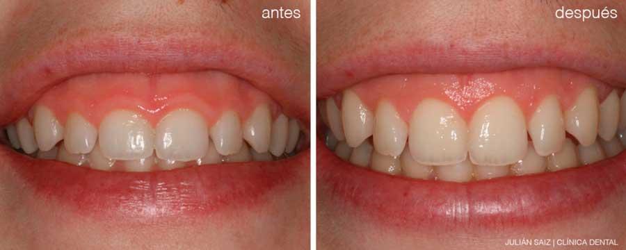 Estética dental | Julián Saiz Clínica Dental