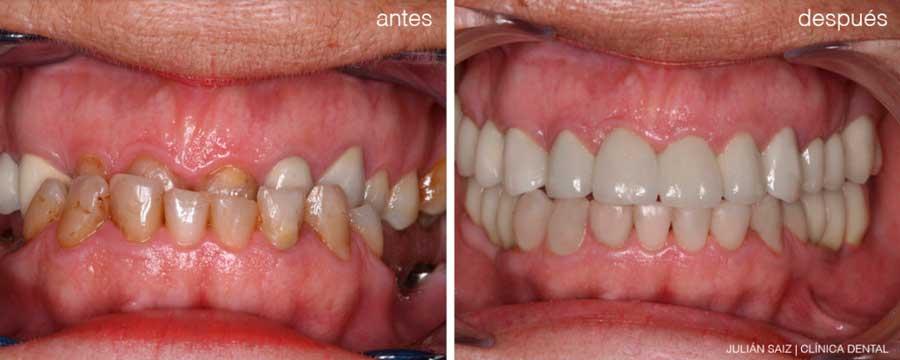 Prótesis e Implantes dentales | Julián Saiz Clínica Dental