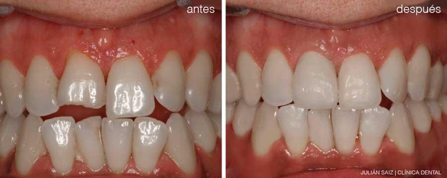 Implantes dentales y cirugía oral | Julián Saiz Clínica Dental