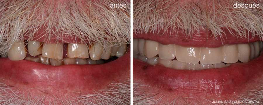 Implantes dentales y periodoncia | Julián Saiz Clínica Dental