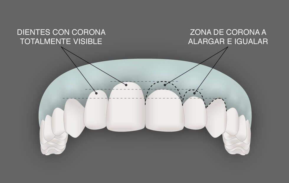 Cirugía estética de la encía | Julián Saiz Clínica Dental