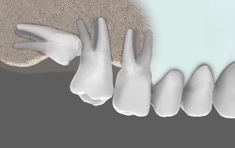Extracciones Complejas | Julián Saiz Clínica Dental