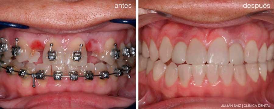 Implantes dentales y ortodoncia | Julián Saiz Clínica Dental
