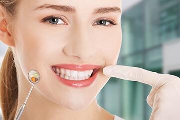 Mantenimiento de las carillas dentales