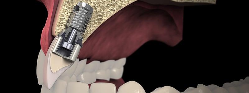 Implantes Dentales Cortos, para casos de poca disponibilidad ósea