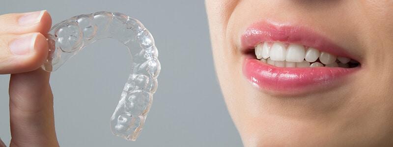 Invisalign - La ortodoncia invisible y discreta para adultos
