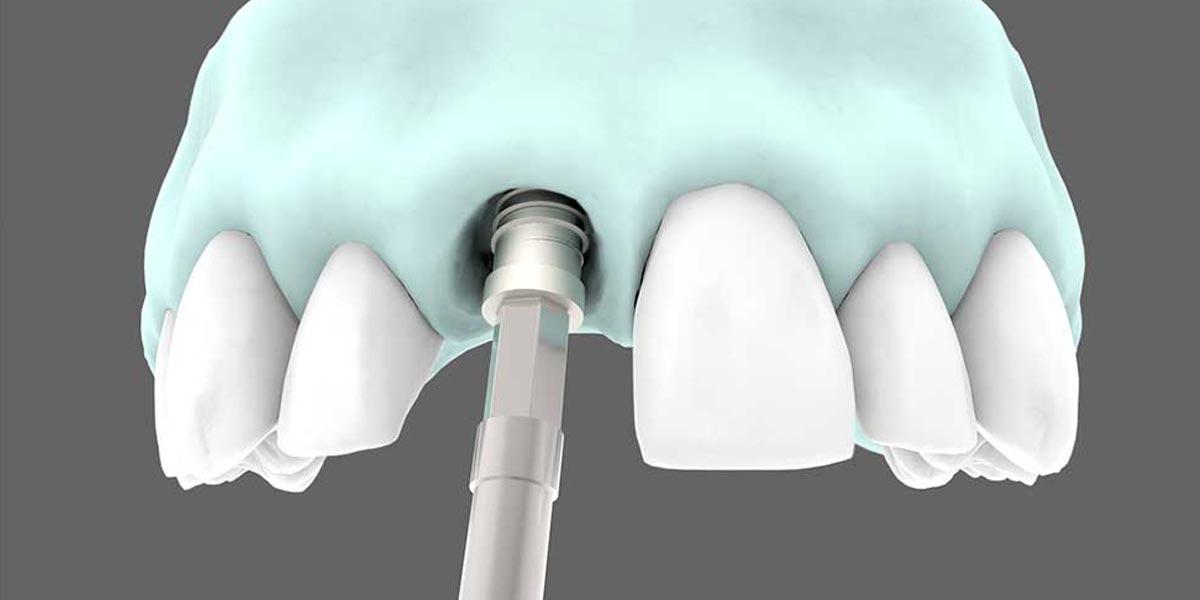 Implantología estética - Implantes de carga inmediata.