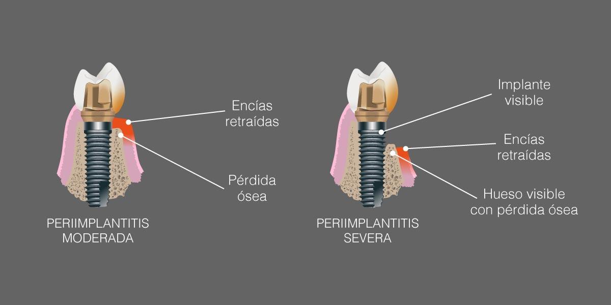 Síntomas de la periimplantitis