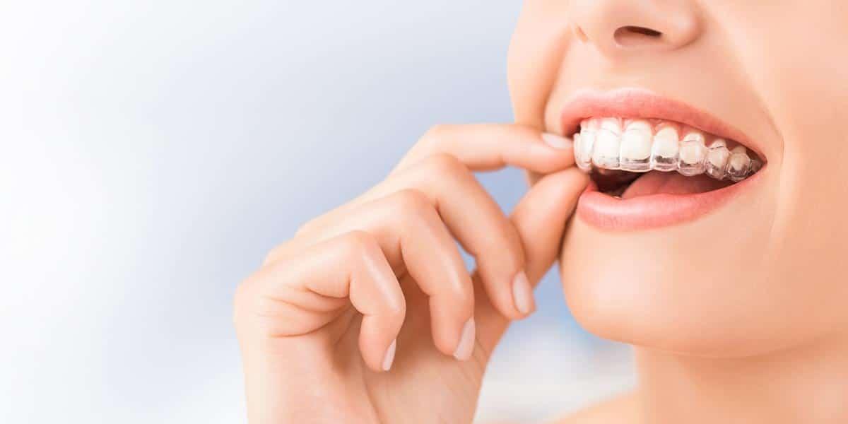 ¿Para quién está recomendado el tratamiento con ortodoncia Invisalign?