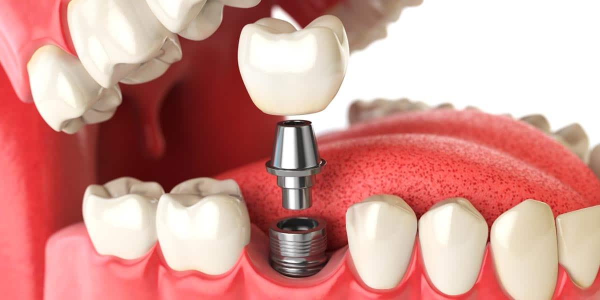 ¿Qué influye en el precio de los implantes dentales?