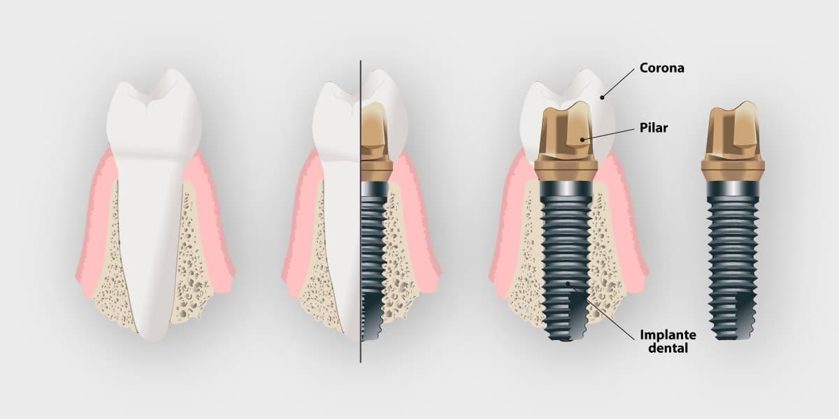 Partes de un implante dental
