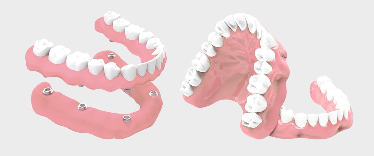 Preguntas sobre implantes dentales - Prótesis dental