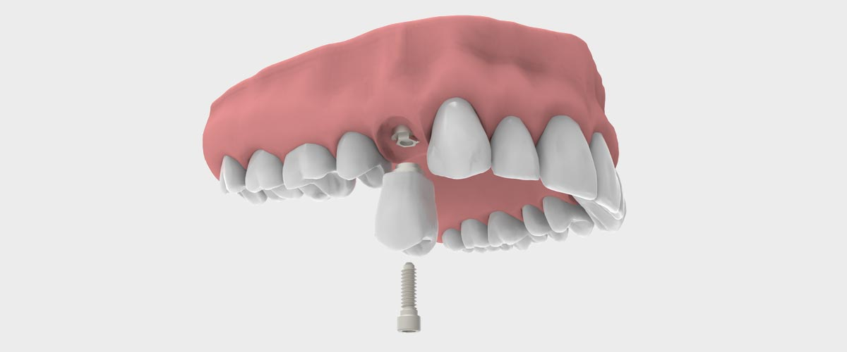 Preguntas sobre implantes dentales - Colocación implante dental