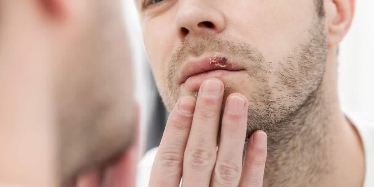 Principales causas de traumatismo dental.