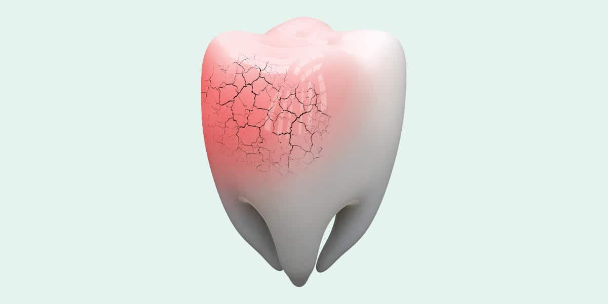 Consecuencias más habituales de un traumatismo dental