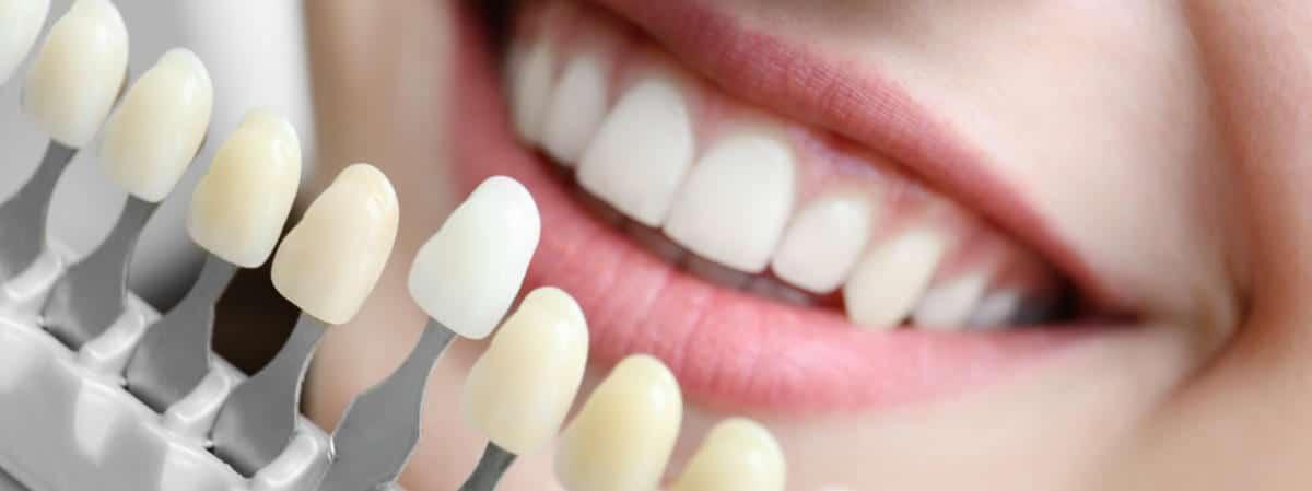 En qué consiste el blanqueamiento dental profesional