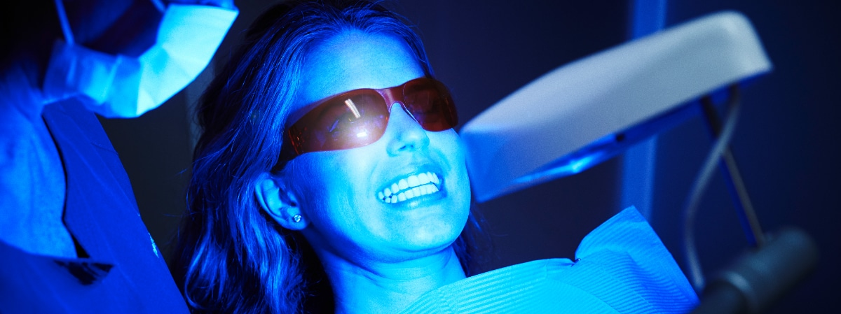 La importancia de un blanqueamiento dental profesional