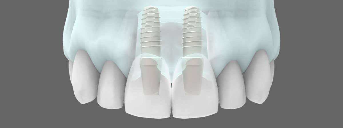 Tipos de implantes dentales - Implantes dentales en zona estética