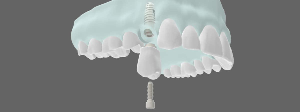 Tipos de implantes dentales - Implantes dentales en un día