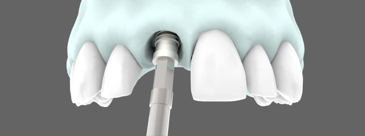 Tipos de implantes dentales - Implantes dentales post extracción