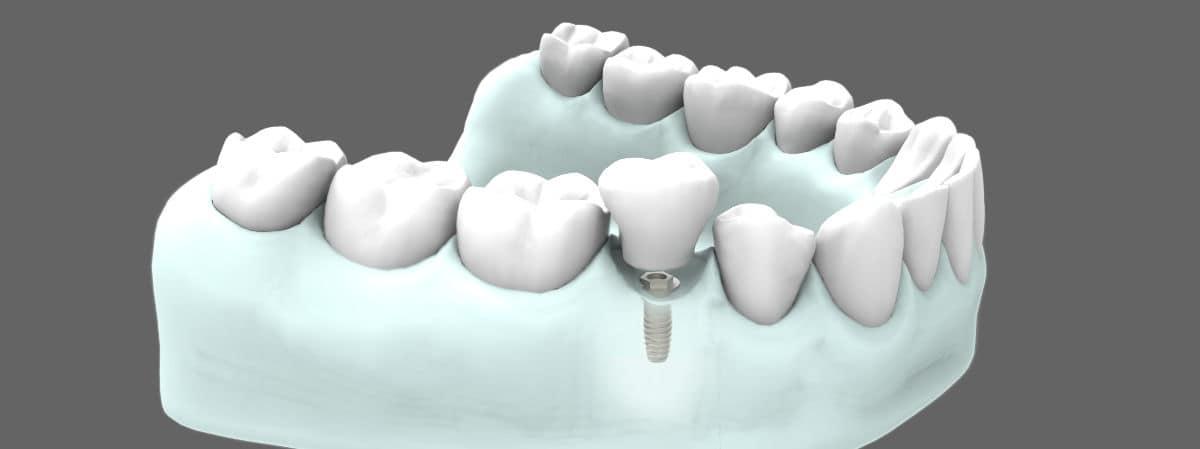 Tipos de implantes dentales - Implantes dentales cortos