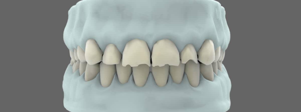 Tipos de implantes dentales - Rehabilitación oral completa