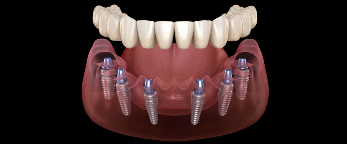 Prótesis implantosoportadas