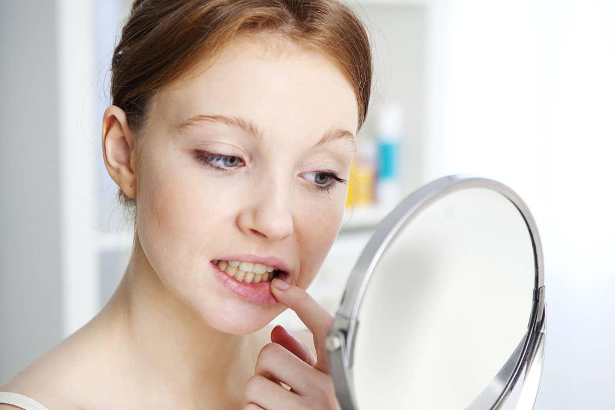 Remodela la forma de tus encías gracias a la cirugía estética de la encía