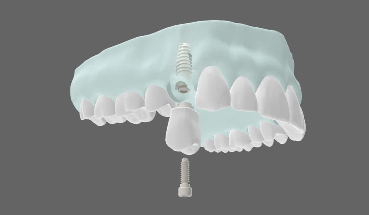 Implantes dentales: tratamientos más comunes.