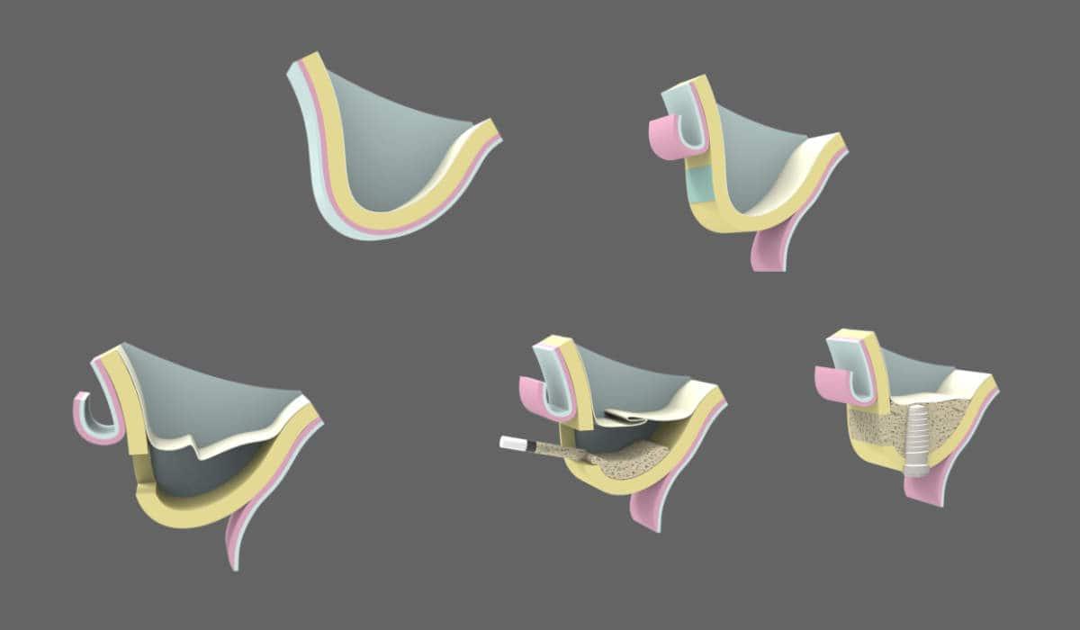 Qué es la elevación de seno maxilar y para qué sirve