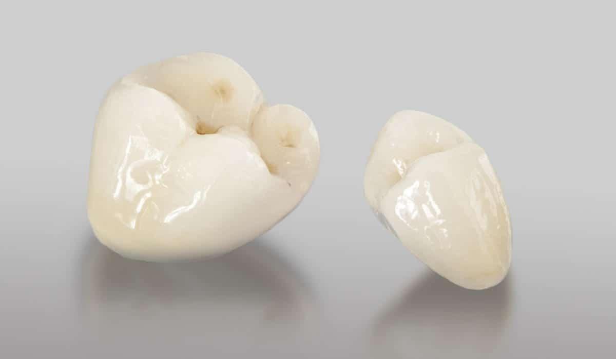 Tipos de coronas de porcelana