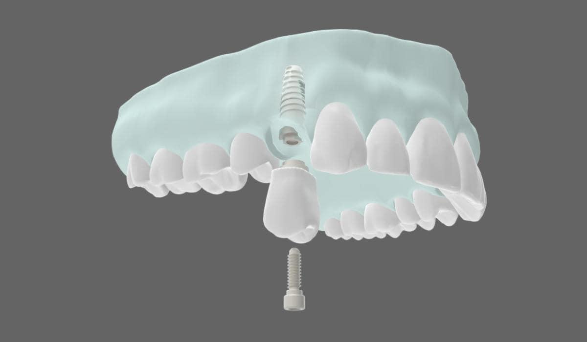 Una técnica fácil y segura para recuperar tus dientes en un día