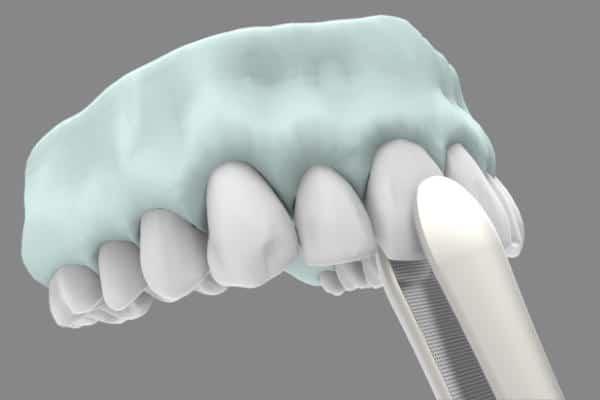 Implantes dentales post extracción