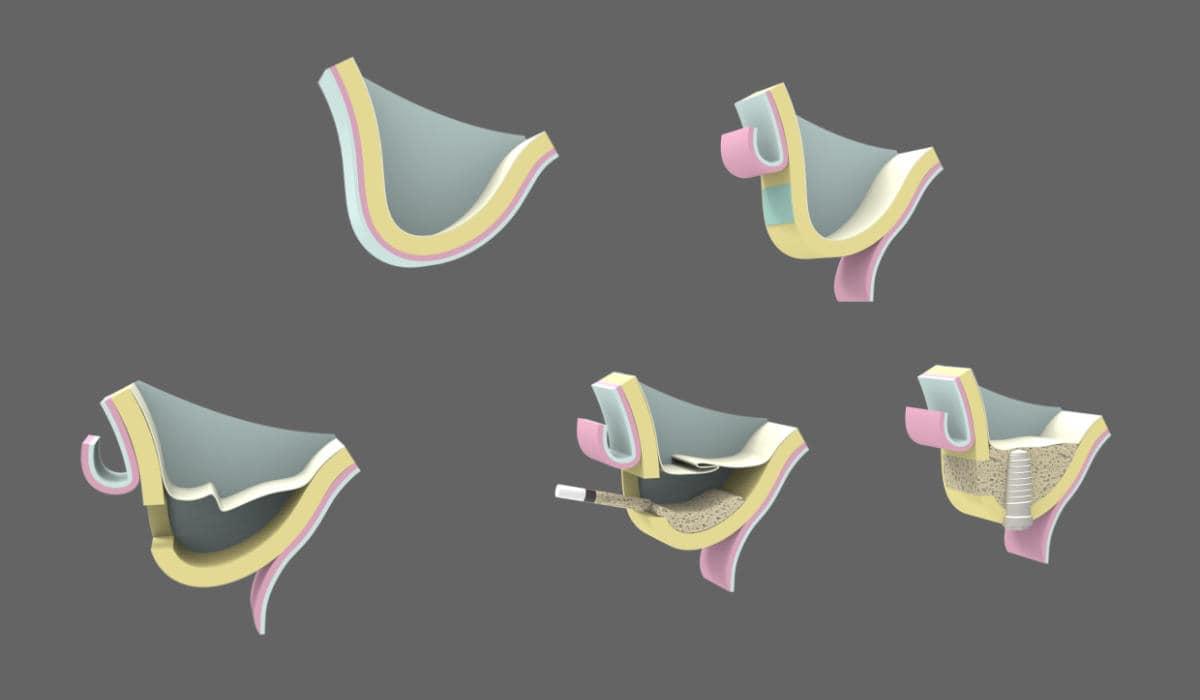 Qué es la cirugía oral - Elevación de seno maxilar