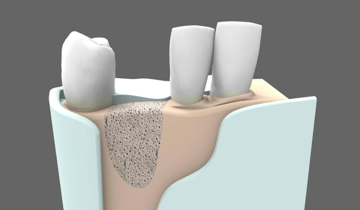 Qué es la cirugía oral - Injerto de hueso