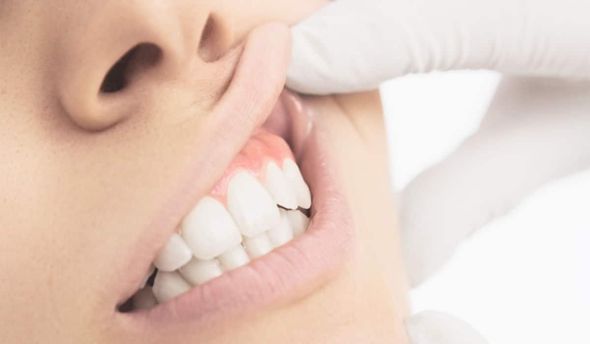 Ponte en manos de profesionales experimentados para tratar tus problemas de gingivitis