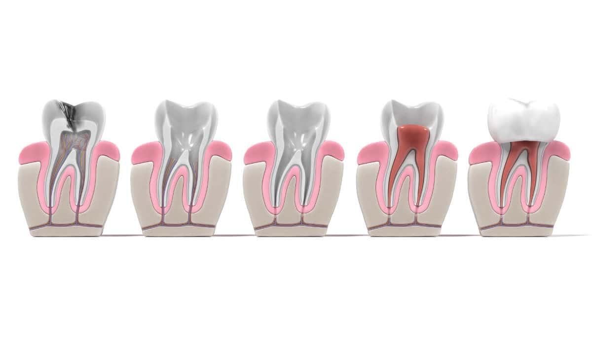 Principales causas para recurrir a una endodoncia