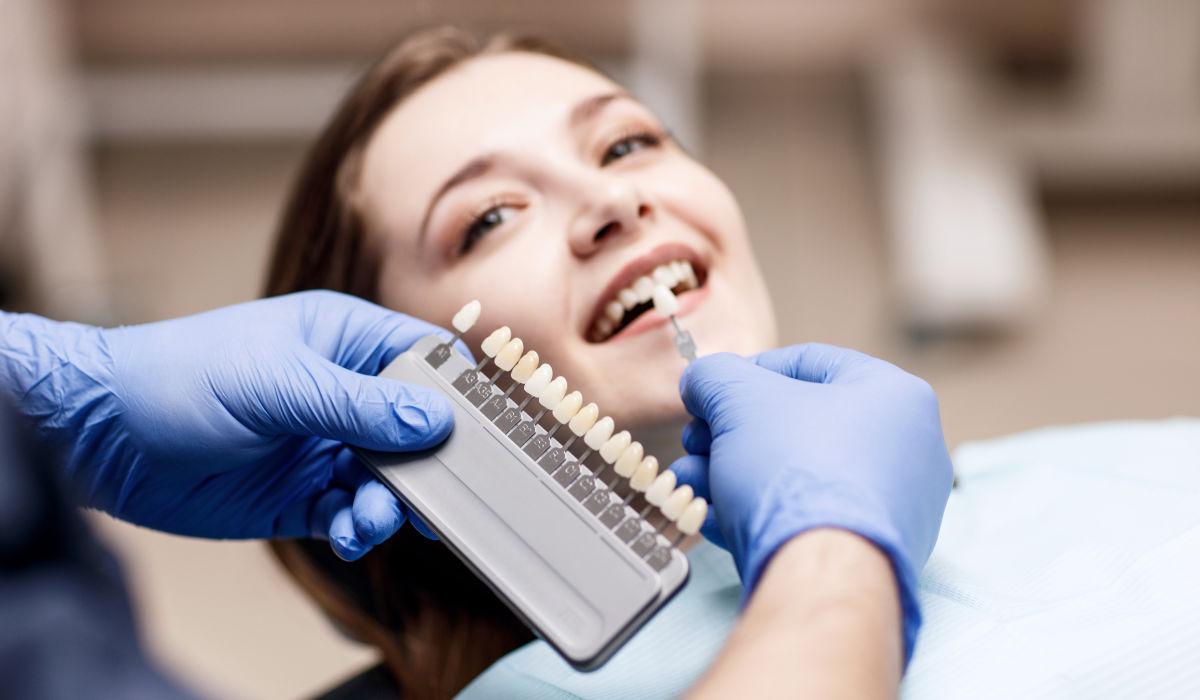 Principales tipos de blanqueamiento dental | Clínica Dental Julián Saiz