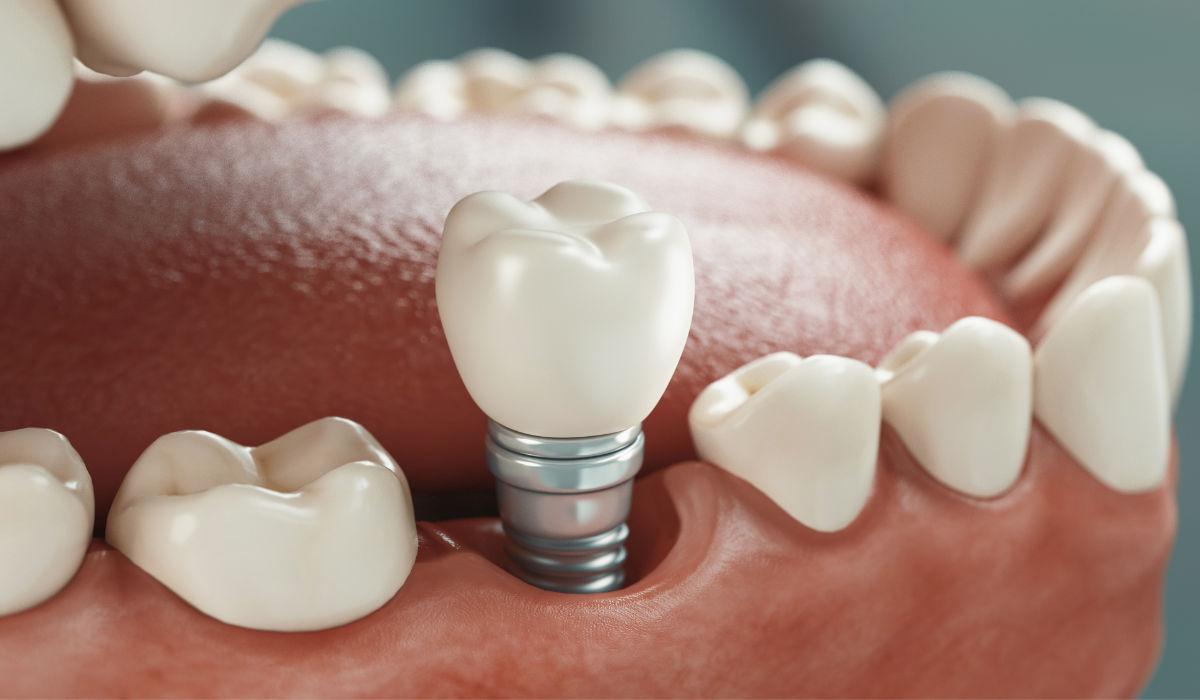 Implantología para recuperar la estética de tu sonrisa | Clínica Dental Julián Saiz
