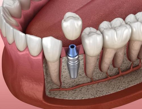 ¿En qué consiste la osteointegración de los implantes dentales?