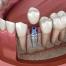¿En qué consiste la osteointegración de los implantes dentales? | Clínica Dental Julián Saiz