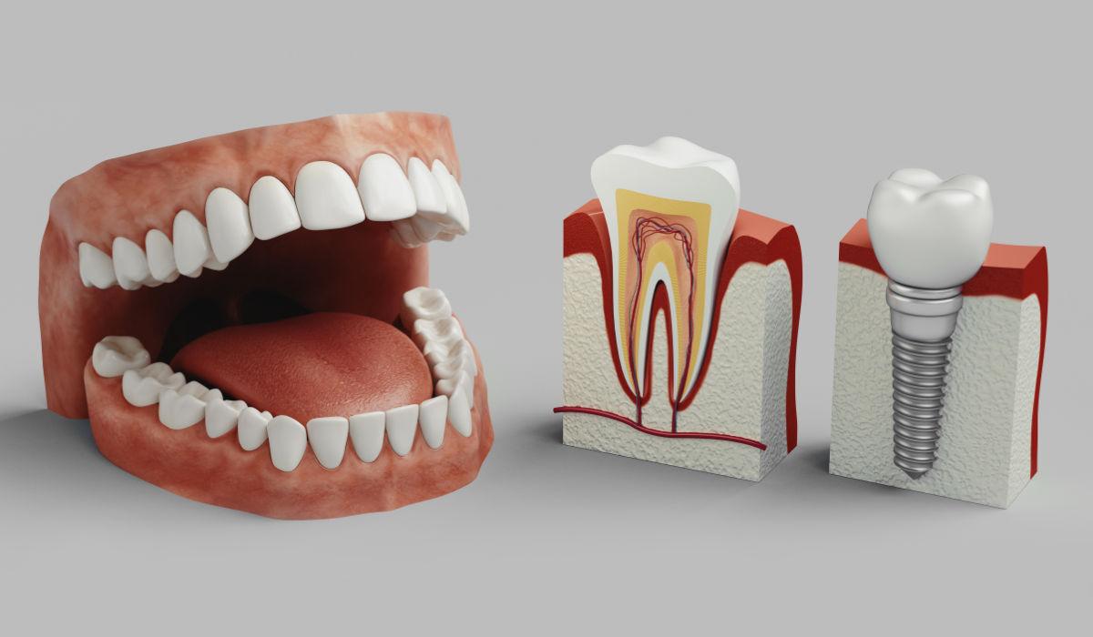 ¿Cómo favorecer al proceso de osteointegración implantológica?