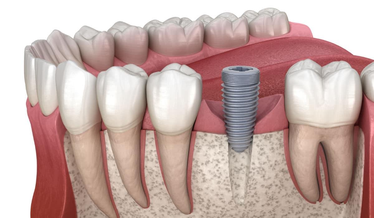 ¿Cuánto tarda la osteointegración implantológica?