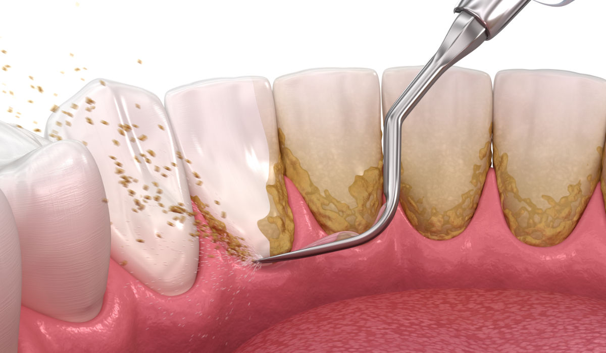 Acumulación de placa | Clínica Dental Julián Saiz