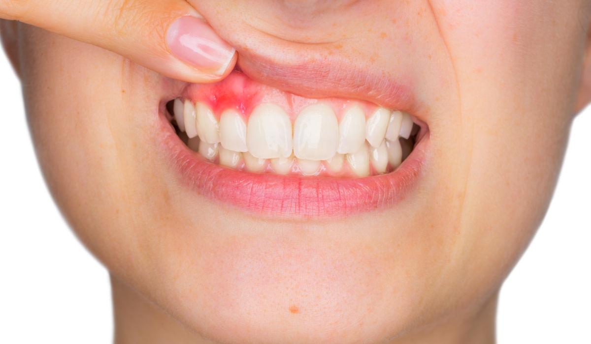 Cuidados dentales en el embarazo | Clínica Dental Julián Saiz